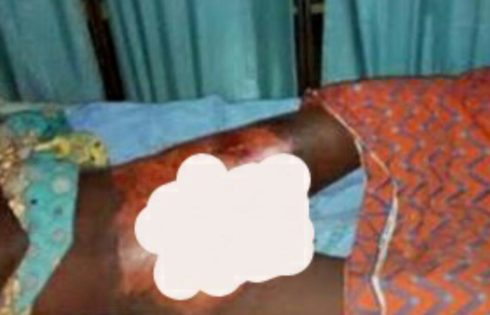 17-Year-Old Boy's Manhood Has Been Burnt By A Couple For Allegedly Raping Their 4-Year-Old Daughter In Sokoto