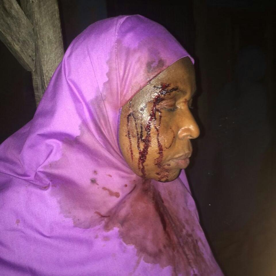 mss_sashs Shares Photos Of Woman Brutalized By Stepchildren While Trying To Kill Her In Anguwan Rimi, Kaduna