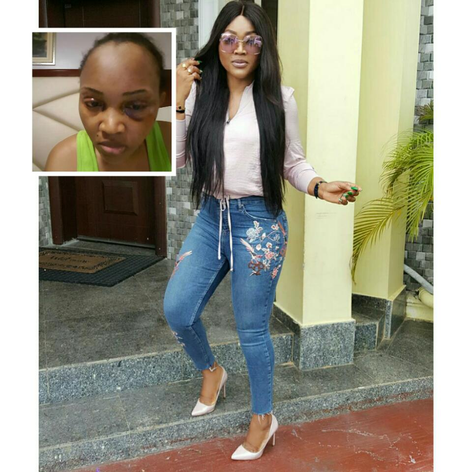 Mercy Aigbe Shared A Throwback Photo Of Brutalized Face By Larry Gentry