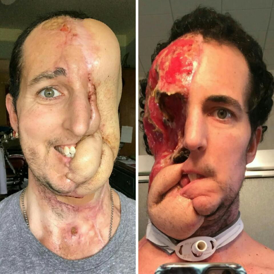 Man Who Lost Half Of His Face To Cancer