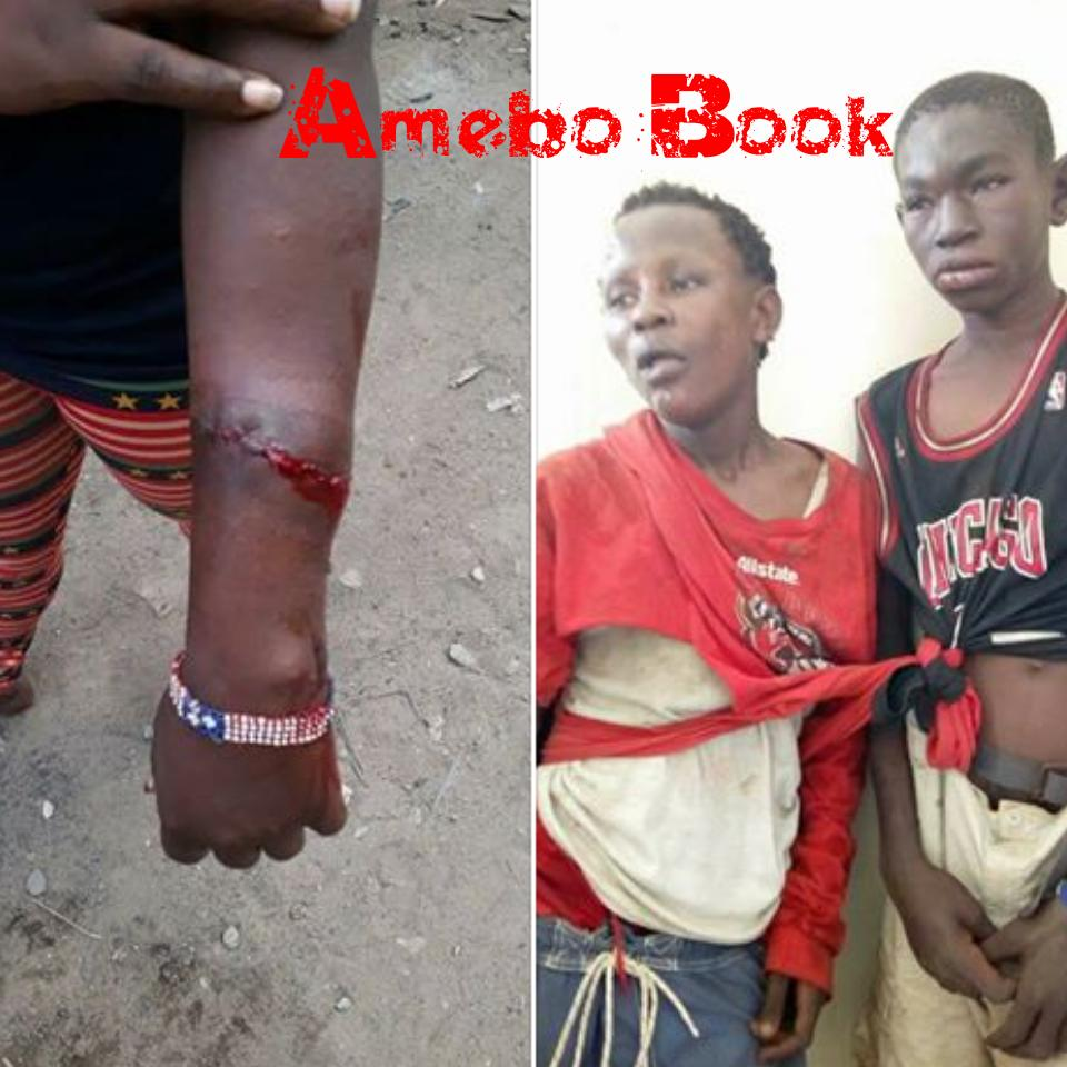 13-Year-Old Robbers Mercilessly Beaten After Inflicting Knife Wounds On Female