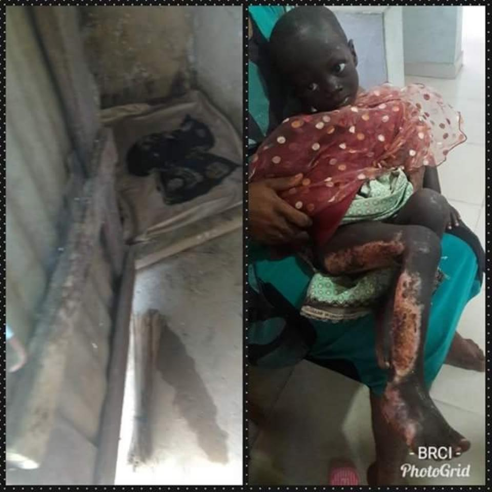 Uncle Ties His Malnourished 2-Year-Old Niece To Tree And Sets Her On Fire