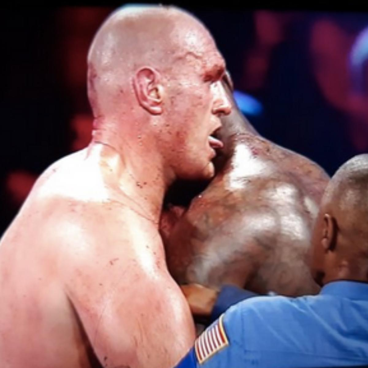 Tyson Fury Licks Deontay Wilder's Bloody Neck